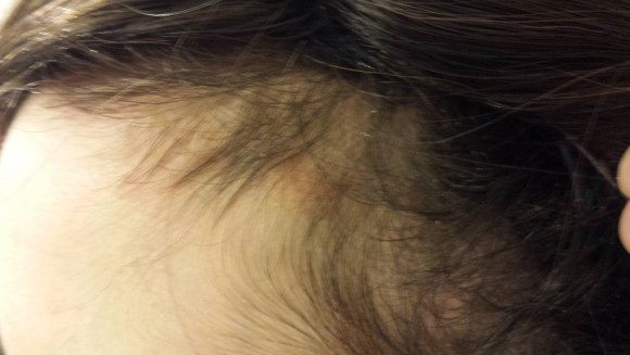 Hair Lose treatment by HP Dermatology Centre