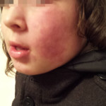 London-Hemangioma-Treatment-ID77007-before1