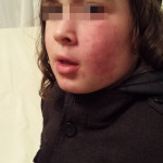 London-Hemangioma-Treatment-ID77007-before2