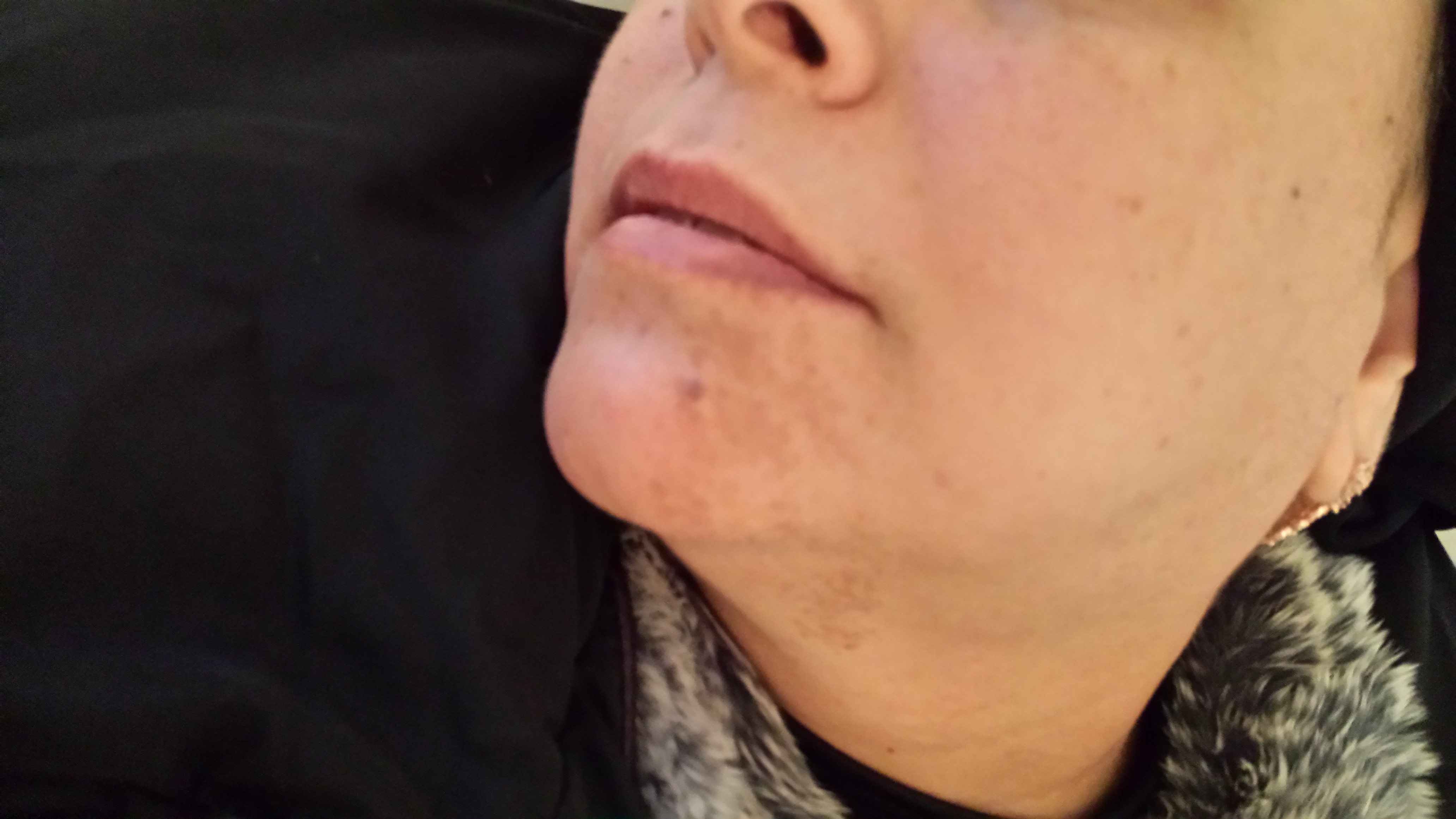 London-Hormonal-Pigmentation-ID77004-Before-20160126_155239