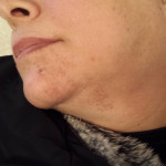 London-Hormonal-Pigmentation-ID77004-Before-20160126_155309