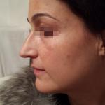London-Hormonal-Pigmentation-ID77033-Before_20160210_212423