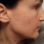 London-Hormonal-Pigmentation-ID77033-Before_20160210_212428