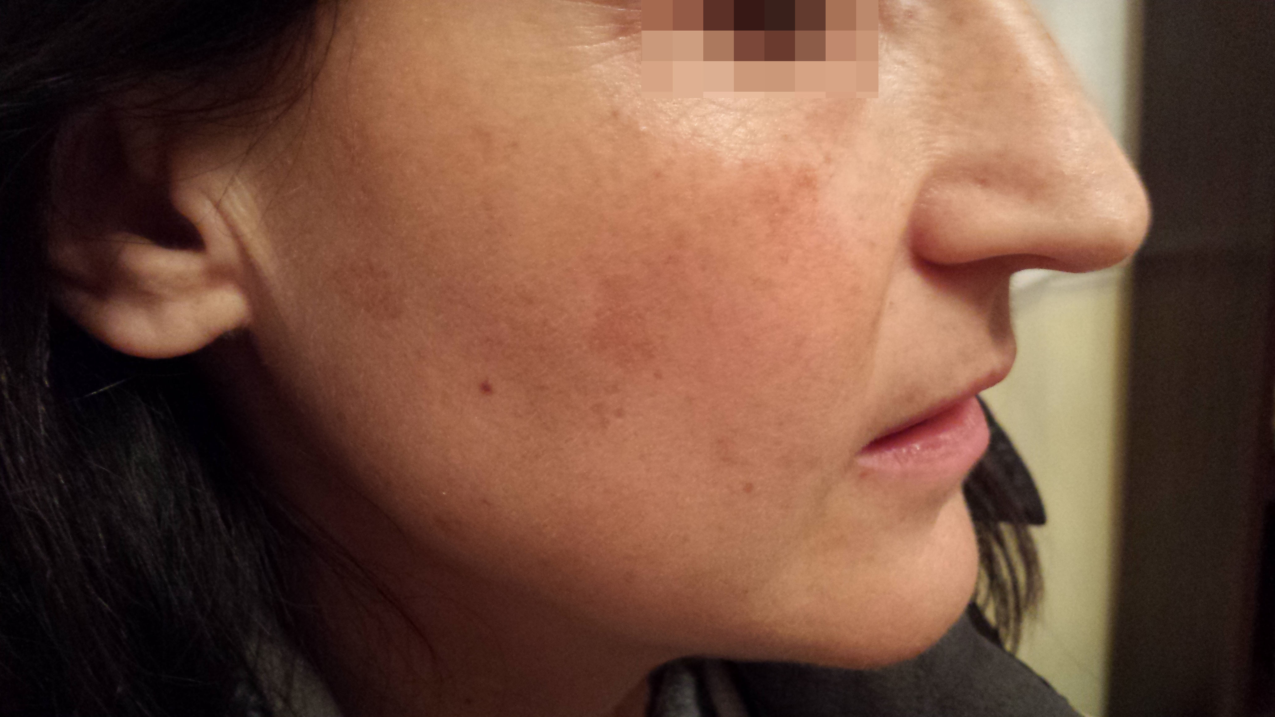 London-Hormonal-Pigmentation-ID77033-Before_After-1st_20160320_211528