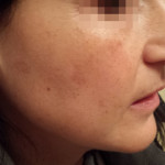 London-Hormonal-Pigmentation-ID77033-Before_After-1st_20160320_211531