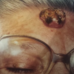 London-Squamous-Cell-Carcinoma-removal-001-before_20151201_183451 (1)